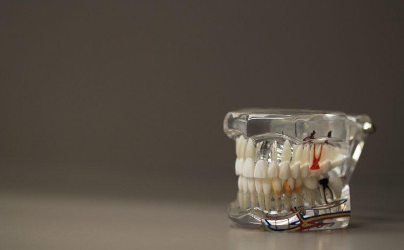 Zła metoda odżywiania się to większe braki w jamie ustnej a dodatkowo ich utratę
